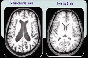 schizophrnic